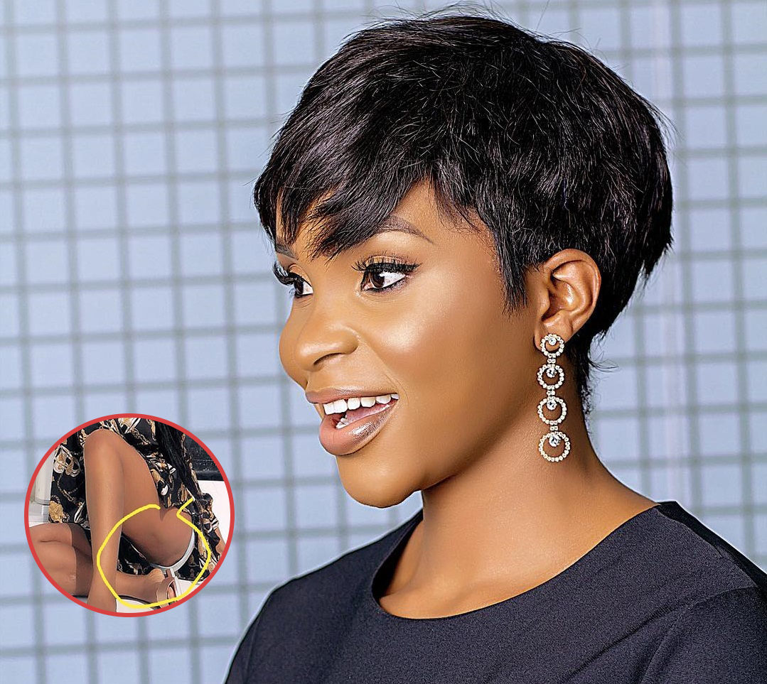 Latest Ghana News: PIC: Benedicta Gafah's Rashes Botors Exposed On Social