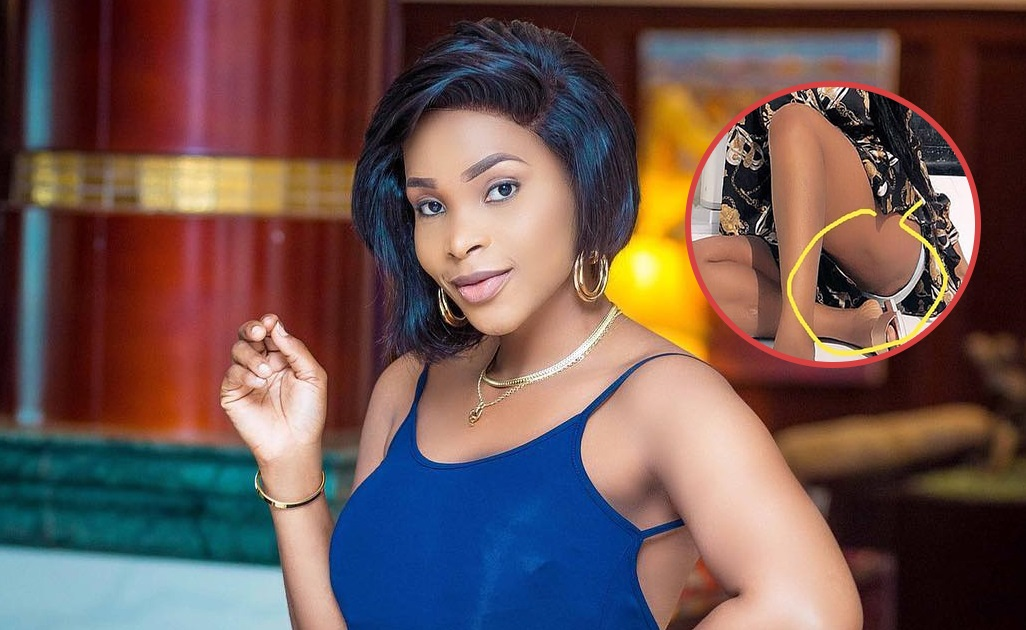 PIC: Benedicta Gafah's Rashes Botors Exposed On Social Media