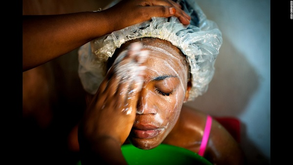 Rwanda Rwanda imposes countrywide ban on skin bleaching productsimposes countrywide ban on skin bleaching products